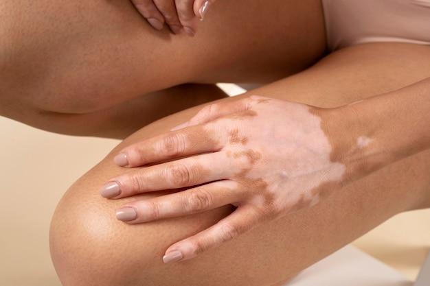 白斑の皮膚部分を見せる女性