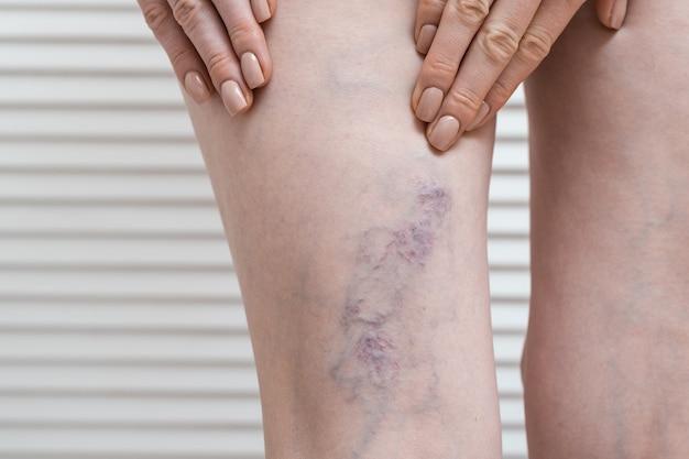 여성은 정맥류가있는 다리를 보여줍니다. 임신 중 정맥류.