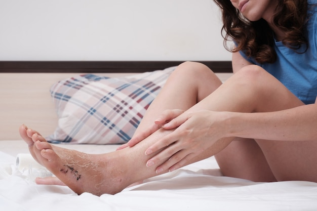 A woman sitting on the bed massages her leg after a fracture home rehabilitation after injury