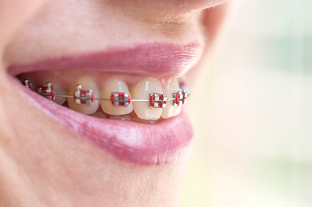 Улыбка женщины показывает зубы с скобами. концепция стоматолога и ортодонта