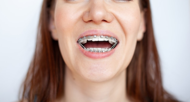 The woman smiles, showing her white teeth with braces. even teeth from wearing braces. the concept of a dentist and an orthodontist.