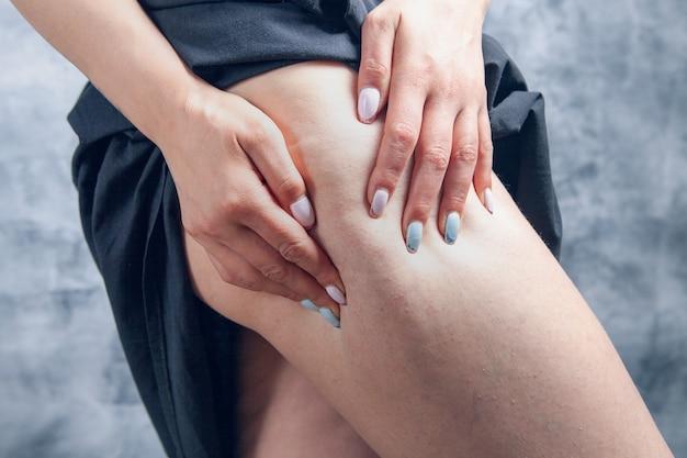女性は灰色の背景にセルライトをチェック脚を絞る