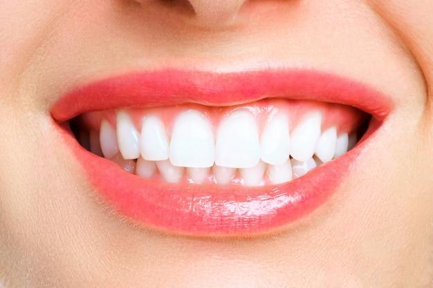 Зубы женщины после отбеливания.