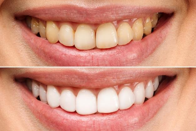 白い背景の上のホワイトニング前後の女性の歯歯科医院の患者の画像は象徴しています