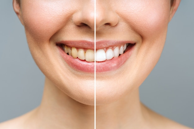Зубы женщины до и после отбеливания на белом фоне изображение пациента стоматологической клиники символизирует