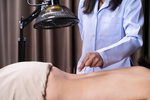 Woman undergoing acupuncture treatment on back
