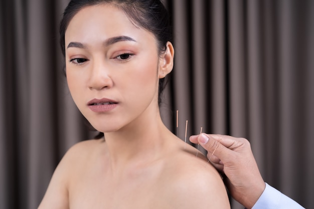 Woman undergoing acupuncture treatment on shoulder