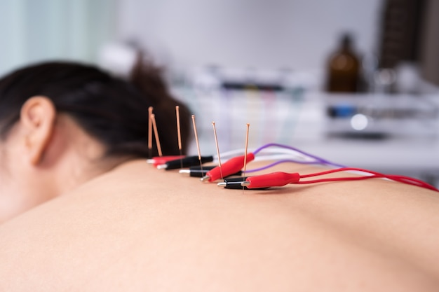 Woman undergoing acupuncture treatment with electrical stimulator on back
