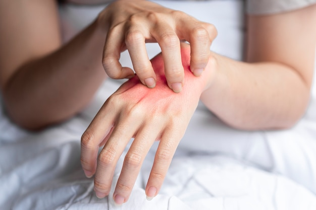A woman was scratching her itchy hand causing her red skin to appear due