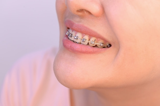 Woman wearing orthodontic retainer. dental care and healthy teeth.