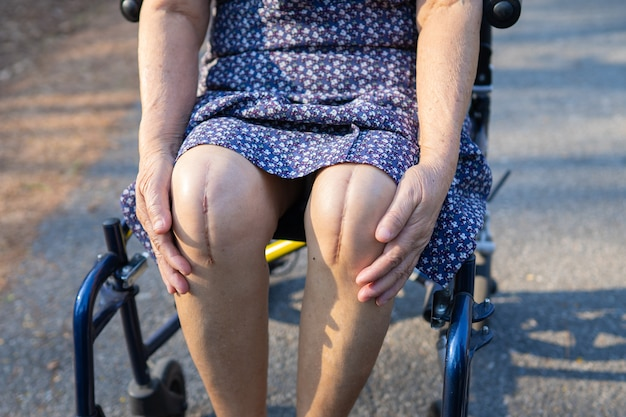 Woman in a wheelchair showing her knee scars