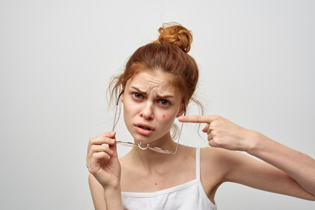 Woman in a white tshirt with glasses pimples on her face