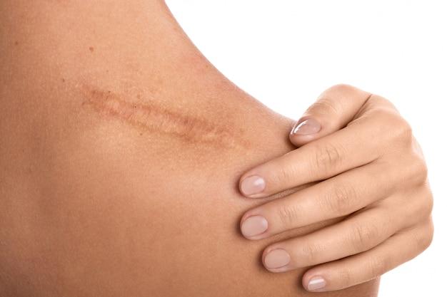 Женщина со шрамом на плече