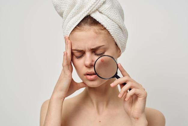 顔にニキビのある女性は、頭に虫眼鏡と動揺した表情のタオルを持っています。高品質の写真