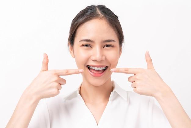 Женщина с брекетами на зубах.