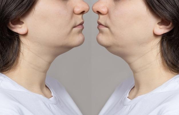 Женщина с двойным подбородком до и после лечения