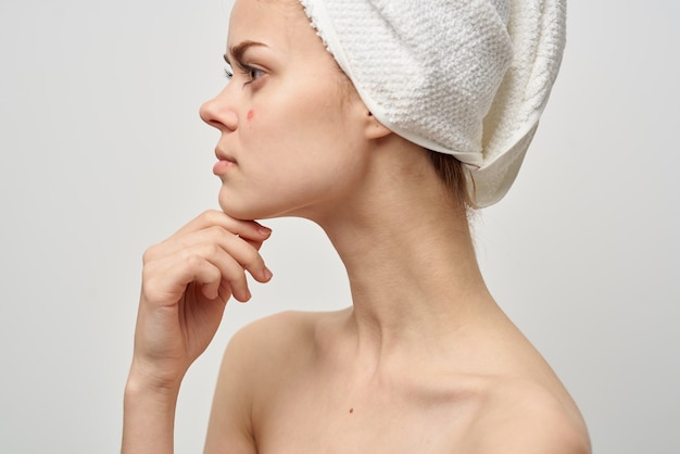 Woman with a pimple on the face skin problems close-up. high quality photo