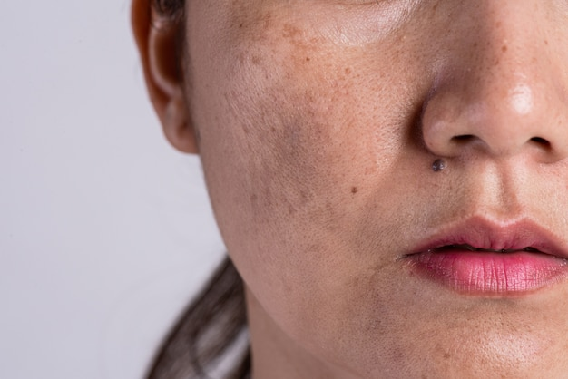 Woman with problematic skin and acne scars. problem skincare concept.