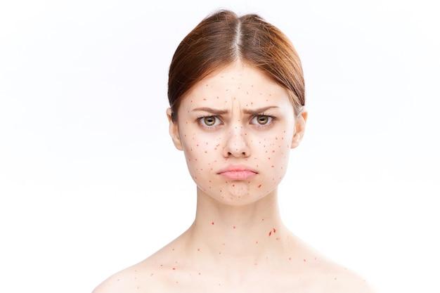 発疹や顔の炎症のある女性