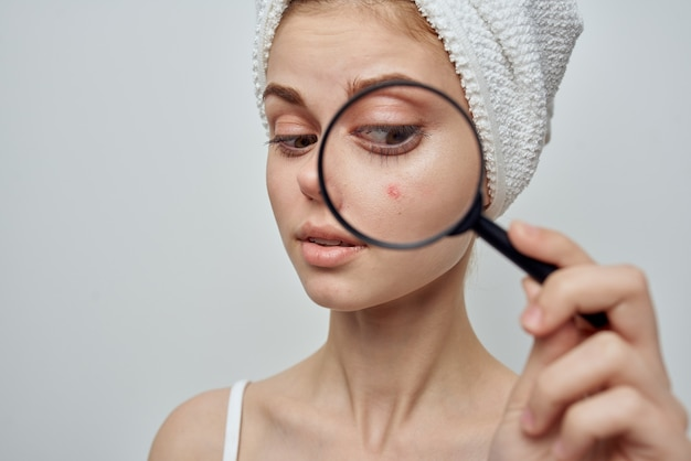 Woman with a towel on her head magnifies pimple