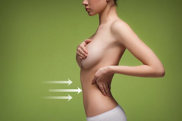 描画矢印を持つ女性の腹。セルライト除去計画。整形手術の準備をしている若い女性の体に白いマーキング。痩身、脂肪吸引、ストランドリフティングの概念