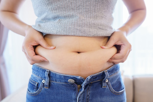 Women body fat belly. obese woman hand holding excessive belly fat. diet lifestyle concept