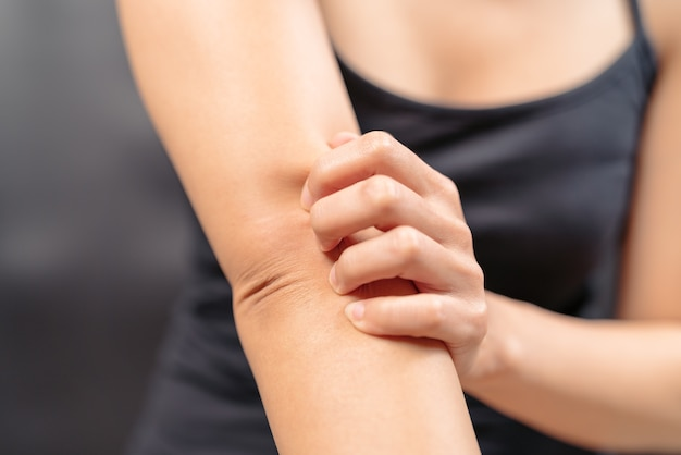 Women hand scratch the itch on arm healthcare and medicine concept.