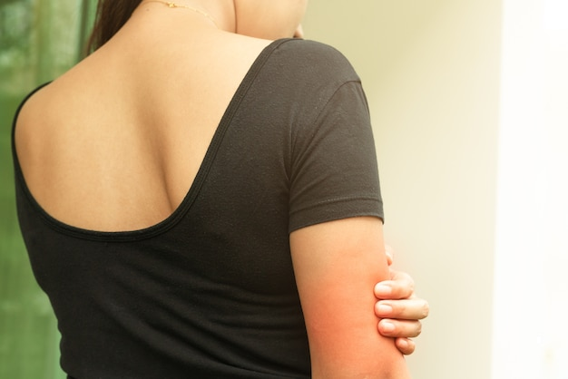 Women hand scratch the itch on arm, healthcare and medicine concept.