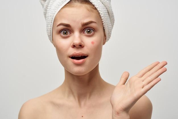 タオルを着て、顔ににきびがあり、手でニキビをきれいにしている女性