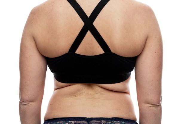 脂肪のひだのある女性の背中。肥満と太りすぎ。白色の背景。