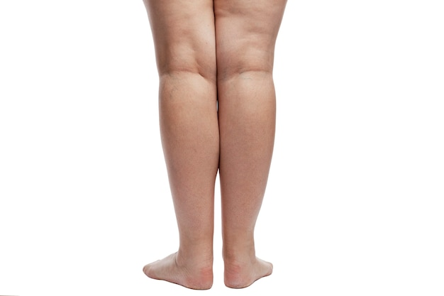 Women's legs with cellulite, veins and excess weight.