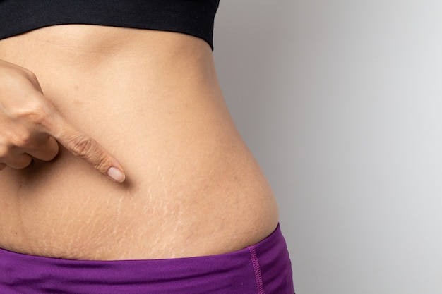Women show off the belly after birth stretch marks on white background