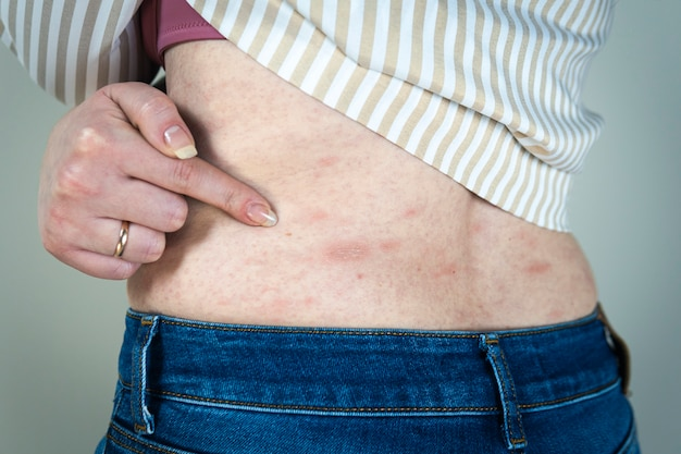 Women with symptoms of itchy urticaria or allergic reaction on the skin