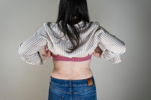 피부에 가려운 두드러기 또는 알레르기 반응의 증상이있는 여성.