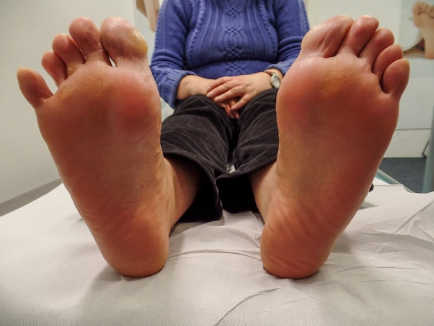 Womens foot physiotherapy and podiatry session
