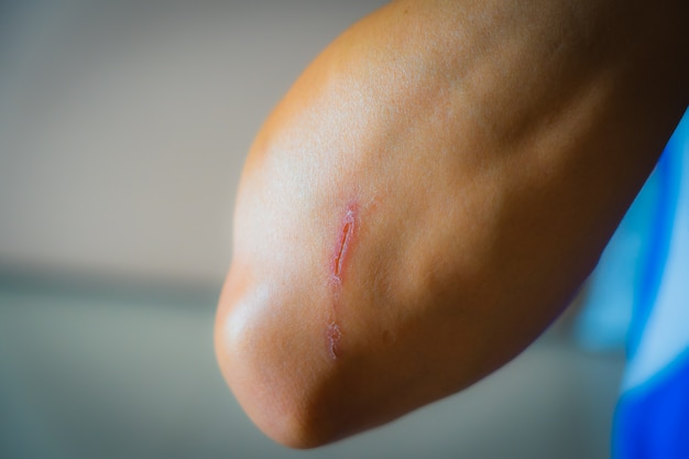 The wounded arm of the person