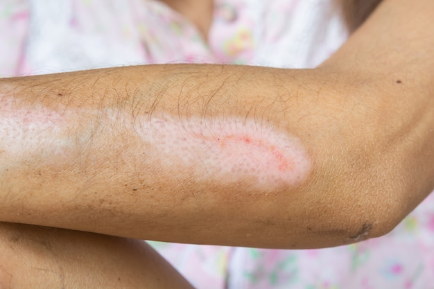 Wounds and arm injuries. lesions from accident