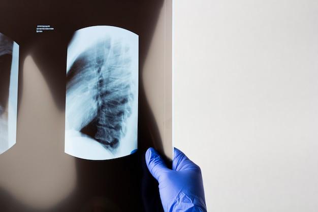 手袋をはめた女性の手が肺のx線フィルムを保持しています。コロナウイルスcovid-19による肺炎の検出検査。 x線を調べる医師。テキストのスペースをコピー