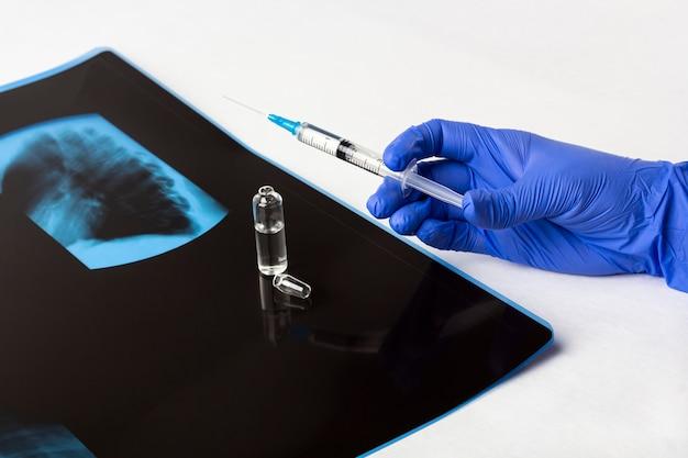 手袋をはめた医師の手は、肺のx線フィルム(スキャン)に対するワクチンを注射器で支えています。治療症状コロナウイルス、covid-19、肺炎および気管支炎の概念。