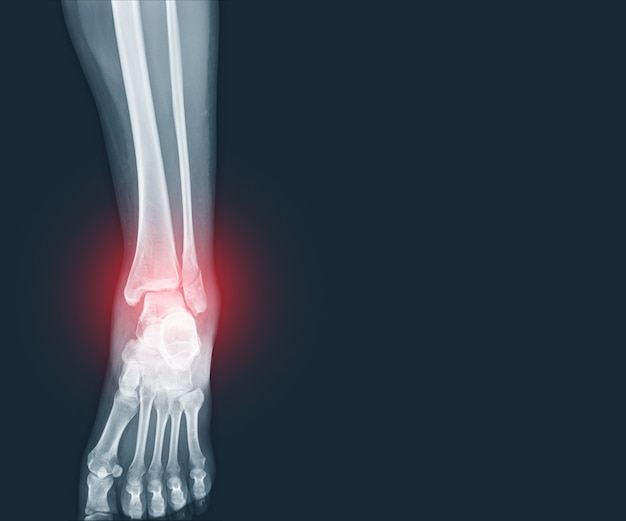 X-ray ankle fracture distal fibula bone with soft tissues swelling on red mark medical concept