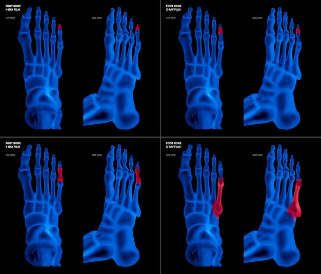 X-ray blue film of little toe foot bone with red highlights on different pain and joint area