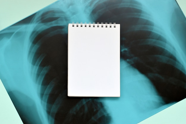 X-ray film image of human chest for a medical diagnosis