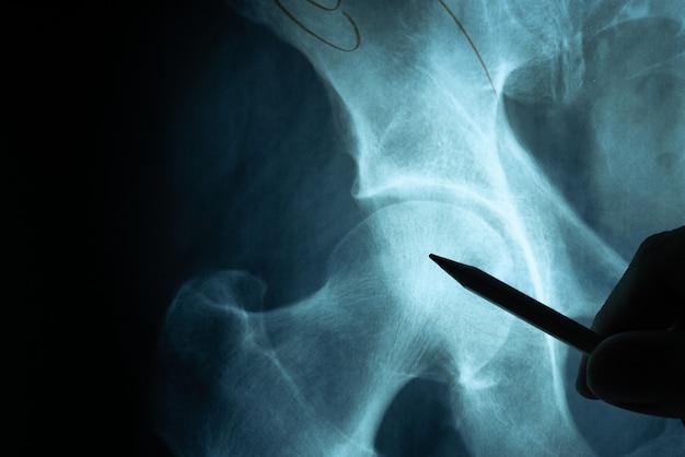 医師の手で調べるx線フィルム