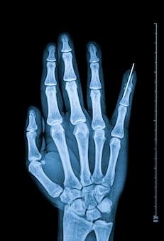 Рентгеноскопия пальцев человека