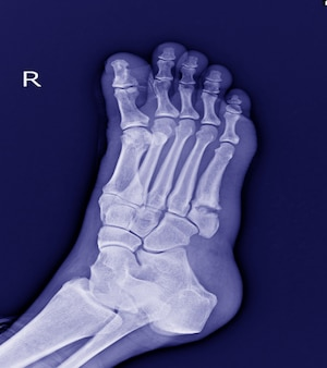 X-ray foot : 5th metatarsal base fracture small bone.fracture foot.