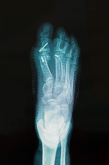 X-ray of foot after surgery to correct hallux varus condition.