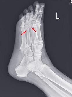 Рентген стопы и голеностопного сустава с переломами плюсневой кости.