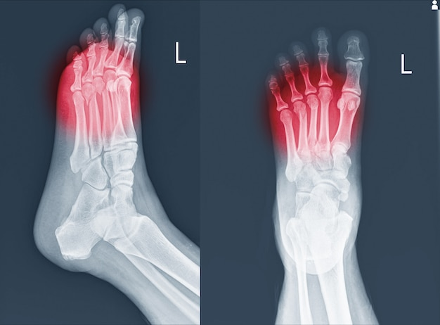 X-ray foot and ankle showing metatarsal fractures .
