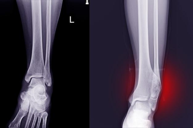X線足の正常な関節と遠位脛骨の骨軟骨腫は腓骨に圧力効果を引き起こします