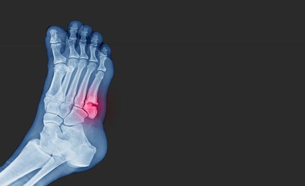 Рентгенограмма стопы с пятым переломом костей (основание плюсневого перелома) со стороны стенки.